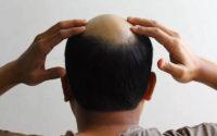 Przyczyny wypadania włosów u mężczyzn i jego leczenie